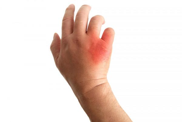 Pilzerkrankungen-der-Haut